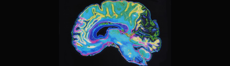 mri-single-brain-1500x430
